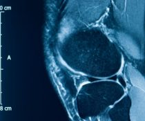 Meniscus Treatments: Causes, Risks and Expected Recovery
