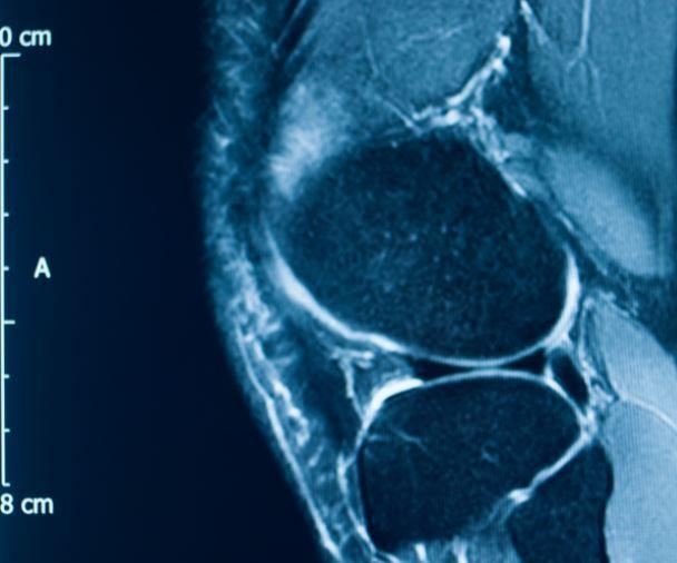 meniscus tear x-ray scan